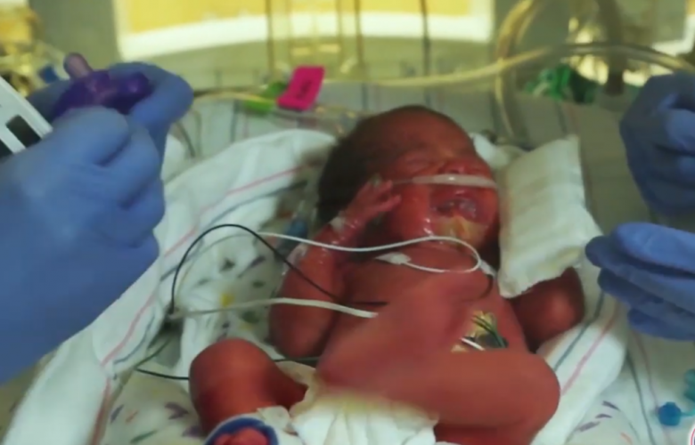 Pro-Lifers Arrested For Protesting CA Hospital Transplanting Aborted Baby Organs Into Lab Rats
